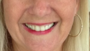 Teeth for blog